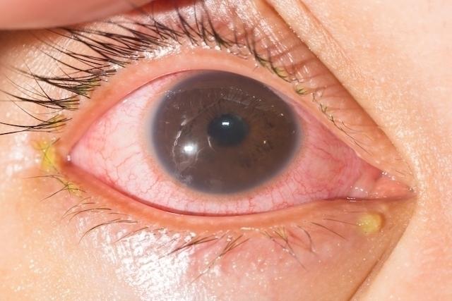 Altas temperaturas são um fator de facilitação da propagação da doença.