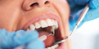 Consultas oferecem atendimentos de clínica geral, além de procedimentos como obturação, limpeza, extração e aplicação de flúor. Foto: Internet/Reprodução